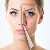 روش های طبیعی جوان سازی پوست