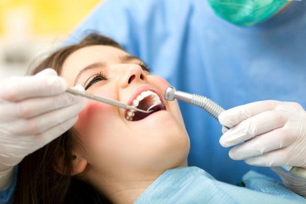 نحوه ی پر شدن دندان توسط دندان پزشک