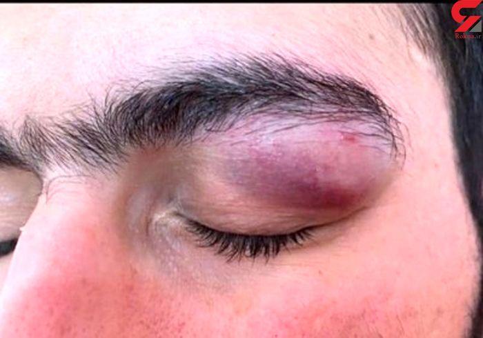 حمله خطرناک باچاقو به چشمان یک پزشک در بندرعباس + عکس تلخ