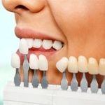 عوارض کامپوزیت و لمینت بر دندان ها را بدانید