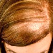 دلایل اصلی ریزش مو در خانم ها
