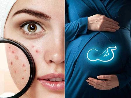 دلیل آکنه در دوران بارداری