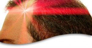 آیا شانه های لیزری برای مقابله با ریزش موها موثر هستند؟
