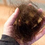 چه میزان ریزش مو در هر روز طبیعی است؟