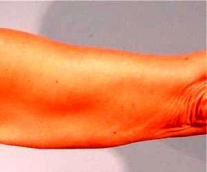 پوست شل بازو را بدون جراحی درمان کنید
