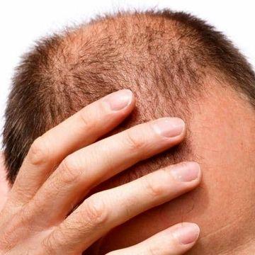 کمبود مو یا نقص عضو