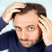 به این روش از موهای خود در فصل سرما مراقبت کنید