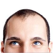 نکاتی که قبل از کاشت مو باید بدانید