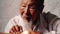 پوست چرب از دیدگاه طب چینی