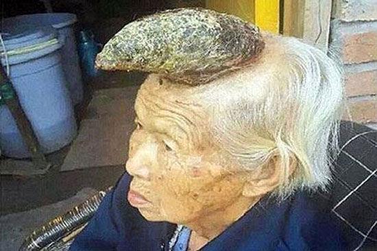 تصاویر عجیب زنی که روی سرش شاخ گوزن دارد+ عکس