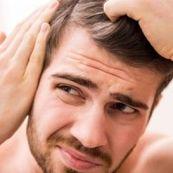 روش های پرپشت شدن مو برای آقایان
