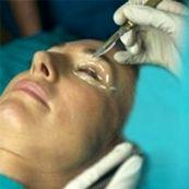 روشهای موثر برای درمان افتادگی پلک