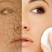 نکاتی در مورد پوست های خشک
