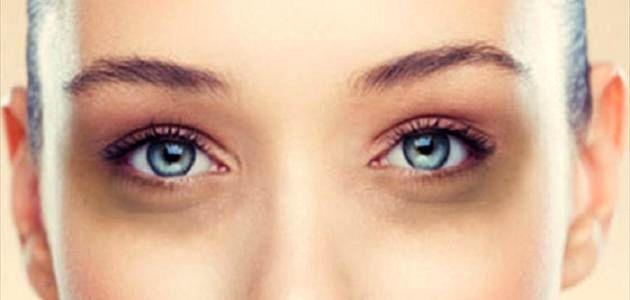 ده راهکار موثر برای از بین بردن تیرگی و پف اطراف چشم ها