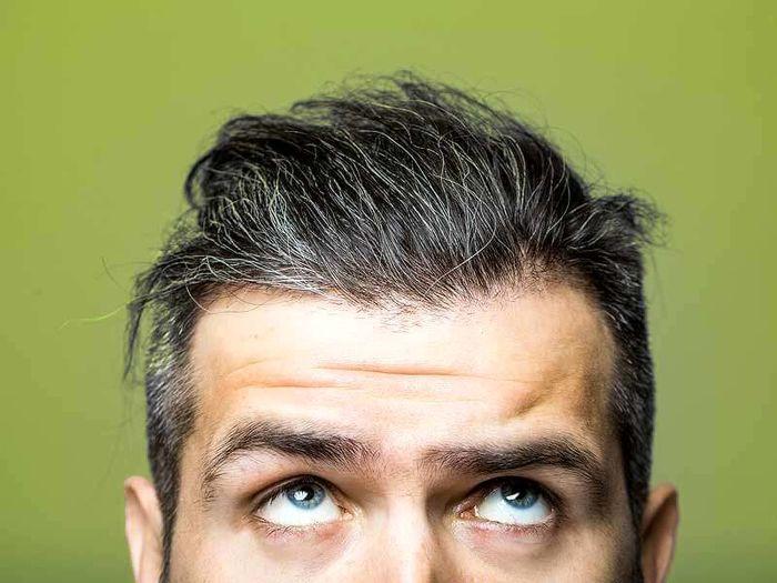 دلایل سفید شدن موها و راه های جلوگیری از آن