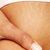 چگونه می توان ترک های پوستی را از بین برد(۱)