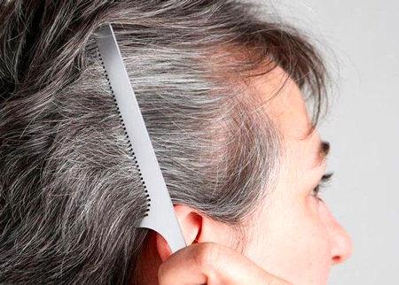 شامپوی مناسب برای رفع سفیدی مو
