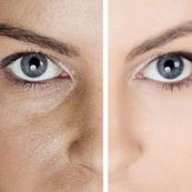 چگونه منافذ پوست را کاهش دهیم