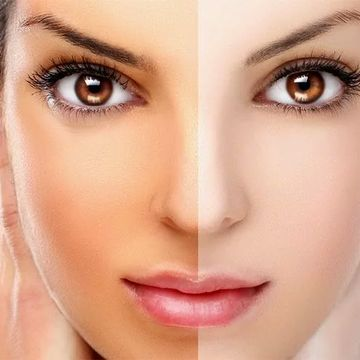 از بین بردن آفتاب سوختگی و تیرگی پوست با راهکارهای خانگی