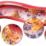 پیشگیری از تصلیب شریان و درمان آن از طریق طب سنتی