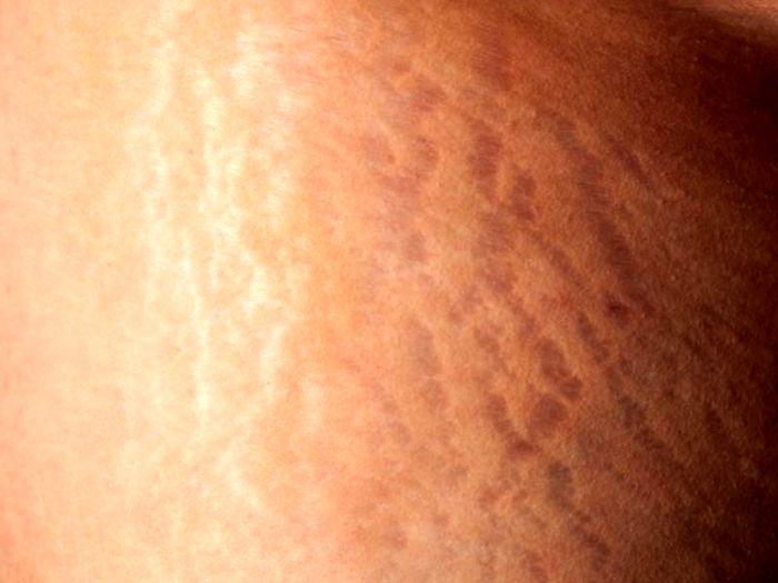 چه افرادی بیشتر مستعد ابتلا به ترک های پوستی هستند