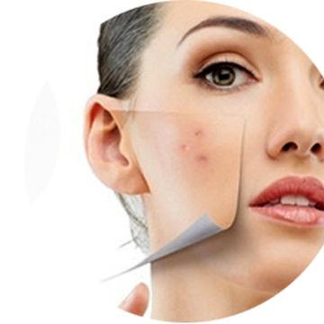 طرز تهیه و مصرف لوسیون رفع کننده لک های آفتاب