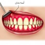 آبسه دندان یعنی چه؟