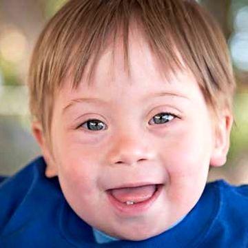 بیماری سندرم داون چگونه ایجاد می شود ؟