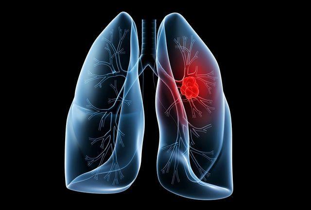 مهمترین عامل ایجاد سرطان ریه چیست؟