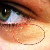 این حالت از پوست نشانه کلسترول بالا است