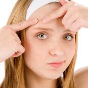 وقتی جوش صورت را می ترکانید، چه اتفاقی برای پوست می افتد؟