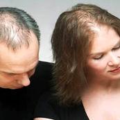 اشخاص عصبی و معضل ریزش مو