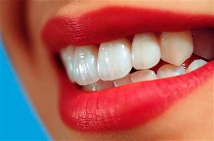 سفید کننده دندان و رفع بوی بد دهان