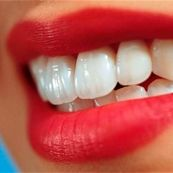 مشکلات دندانی که شما آن ها را دوست ندارید