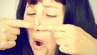 چگونه جوش های سر سیاه روی بینی را از بین ببریم؟