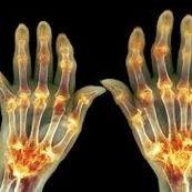 راه های درمان بیماری آرتروز