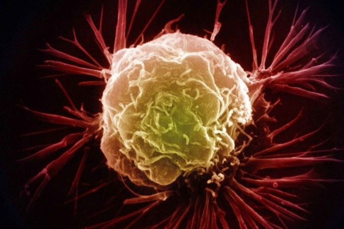 معایب روش های رایج درمان سرطان