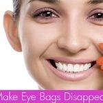 بدون جراحی پلاستیک، کیسه های چربی زیر چشم را درمان کنید