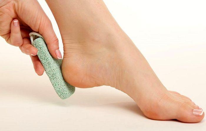 با این روش های ترک های پا را در خانه درمان کنید