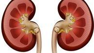 درمان سنگ کلیه و مثانه