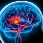 علائم و نشانه های سکته ی مغزی
