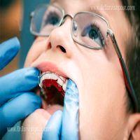 با این روش از کج شدن دندان کودکان پیشگیری کنید