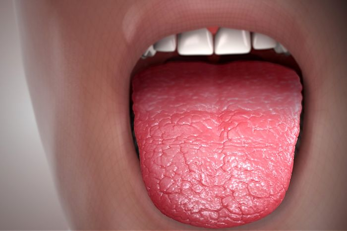علل و روش های درمان خشکی دهان