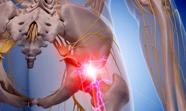 علل بروز بیماری های دیسک کمر و سیاتیک