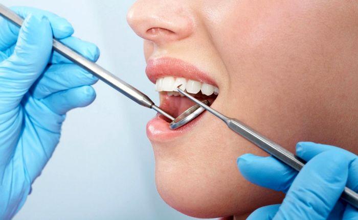 نکاتی که در بهداشت دهان و دندانها باید رعایت شود
