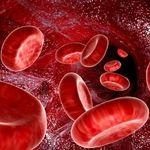 کم خونی ناشی از اتلاف خون