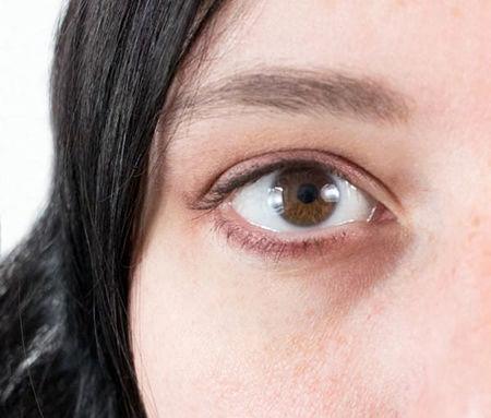 طبیعیترین درمان برای سیاهی دور چشم را بشناسید