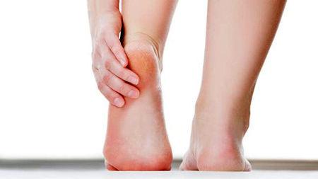 روش درمان پاشنه های ترک خورده پا