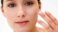 نکاتی مهم در مورد پوست چرب