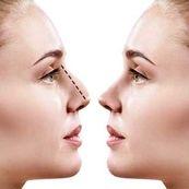 سریع ترین روش کوچک کردن بینی